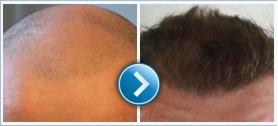 Pár szóban a hair transplant folyamatáról